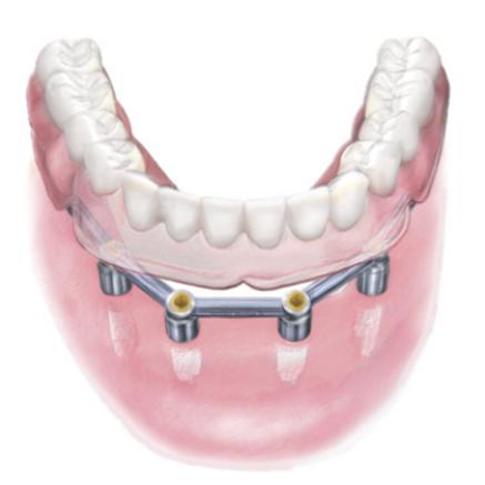 インプラントで支えるから、しっかり噛める入れ歯があります