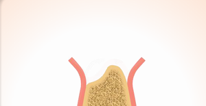 2.歯ぐきを切開して確認