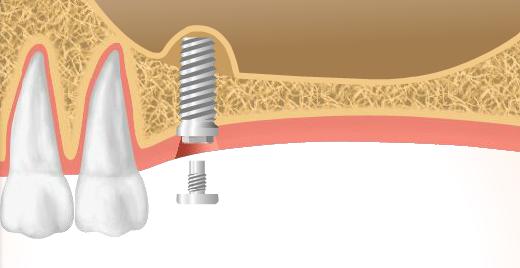 3.インプラント体の埋入