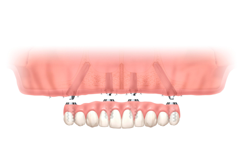 多くのインプラントを埋め込むことなく、すべての人工歯を支える治療
