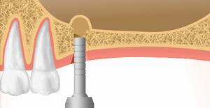 2、粘膜を持ち上げて骨を入れる