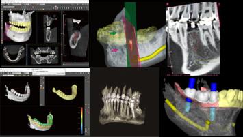 術前シミュレーションソフトによる最先端インプラント治療