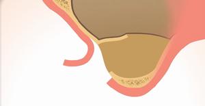 1.骨の移植