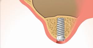 3.インプラント治療の再開