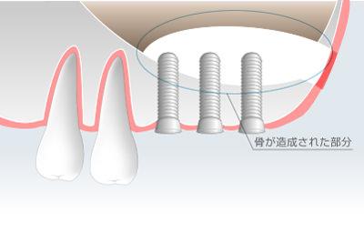 上あごの骨量を回復させてインプラント治療を可能にします