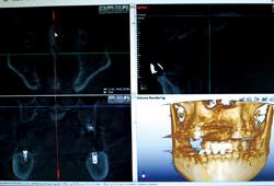 歯科用CT画像処理ソフト